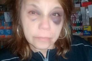 """Córdoba: Sufrió brutal golpiza durante un robo: Ladrones le dijeron que era su """"trabajo"""""""
