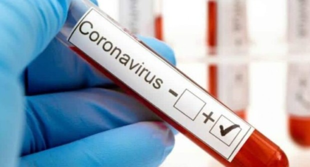 FEDERAL: Informe epidemiológico 22 nuevos casos de Covid-19 confirmados